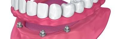 close up model of implant supported dentures l implant supported dentures lakeland fl